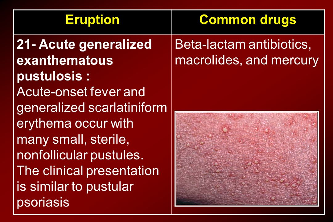 Common drugs Eruption. Beta-lactam antibiotics, macrolides, and mercury.