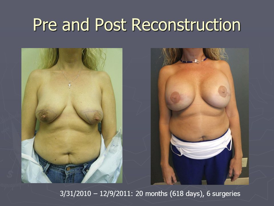Pre and Post Reconstruction