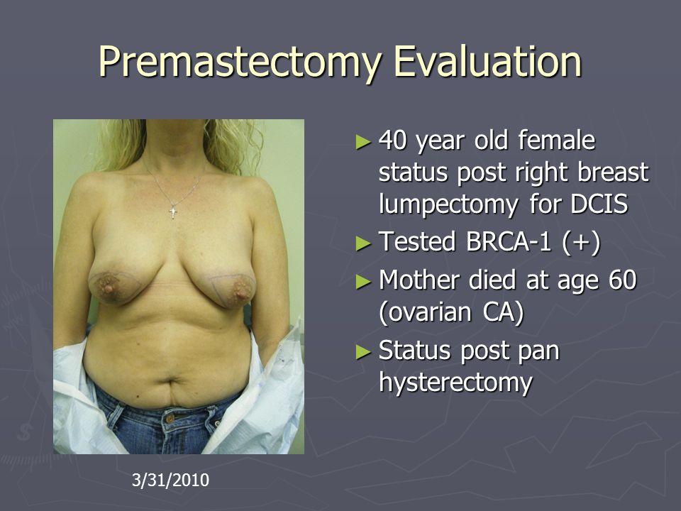 Premastectomy Evaluation