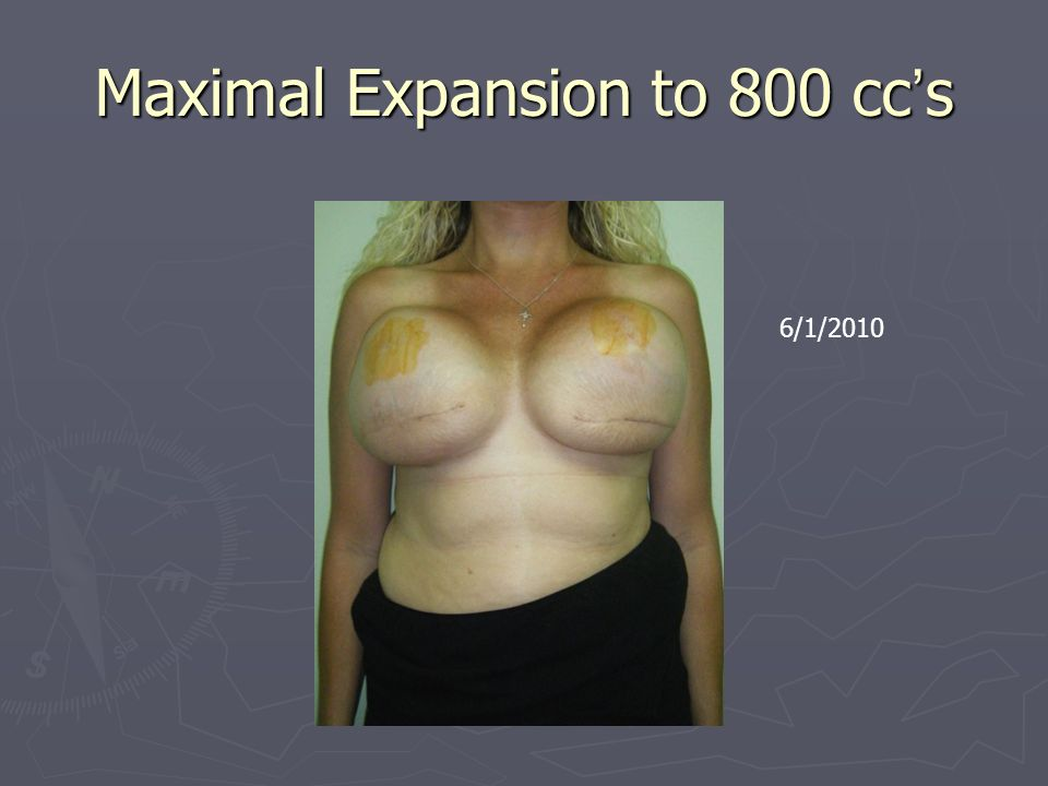 Maximal Expansion to 800 cc's