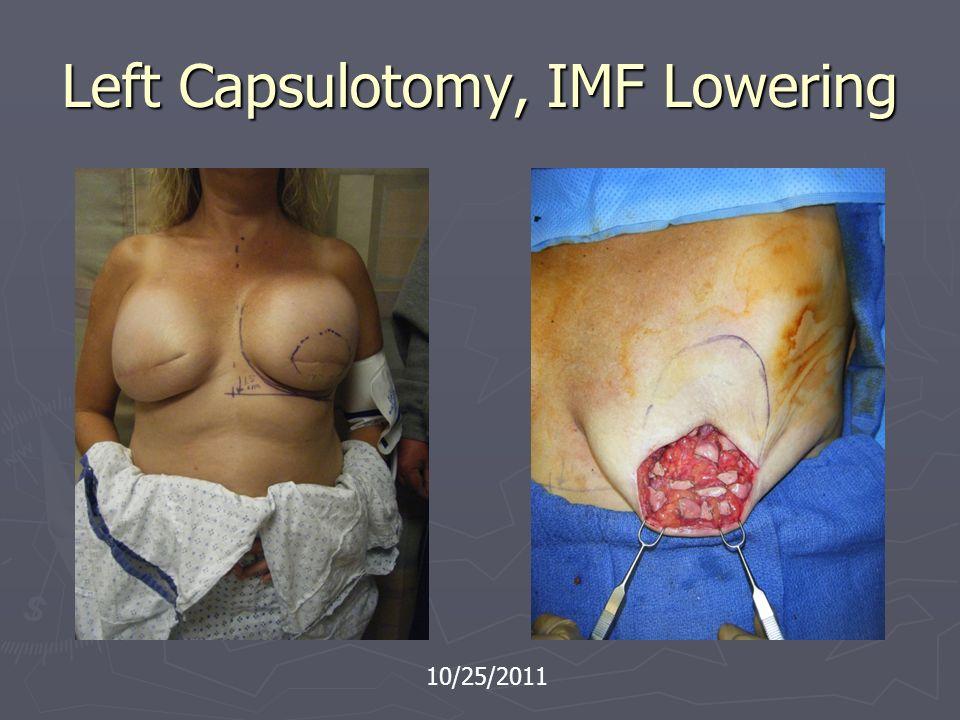 Left Capsulotomy, IMF Lowering