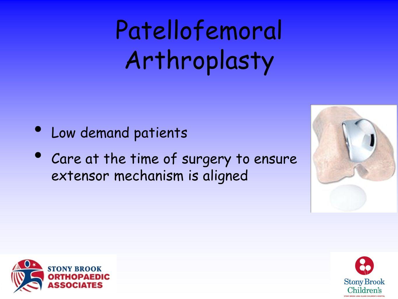 Patellofemoral Arthroplasty