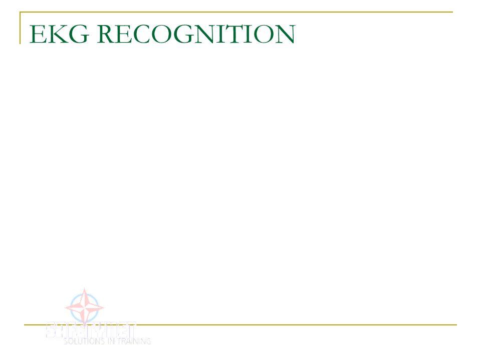 EKG RECOGNITION
