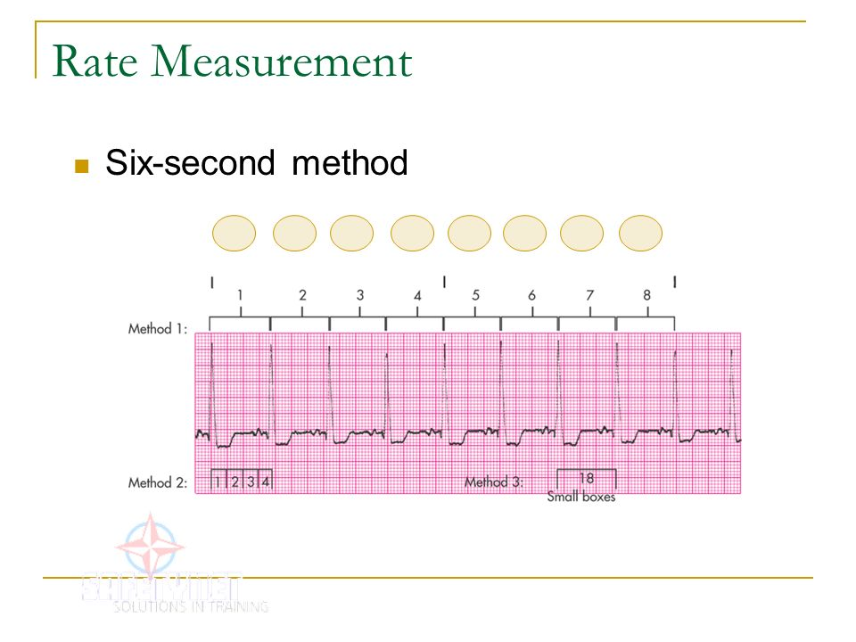 Rate Measurement Six-second method