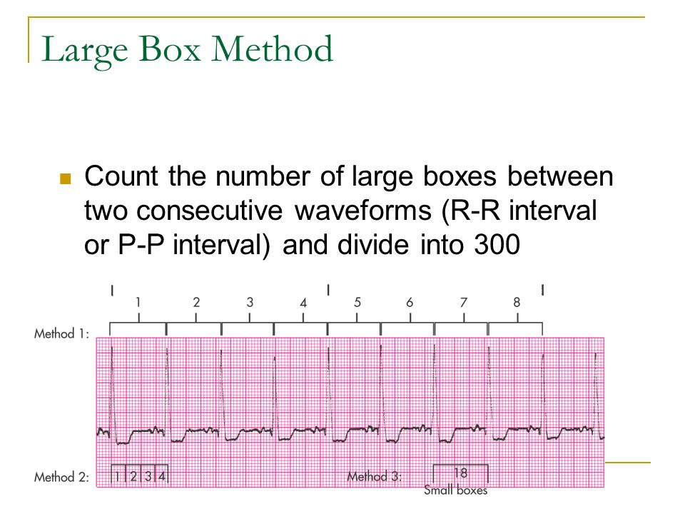 Large Box Method Count the number of large boxes between two consecutive waveforms (R-R interval or P-P interval) and divide into 300.