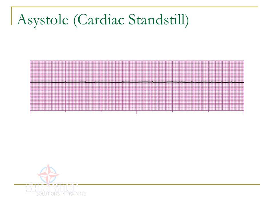 Asystole (Cardiac Standstill)