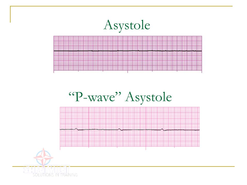 Asystole P-wave Asystole