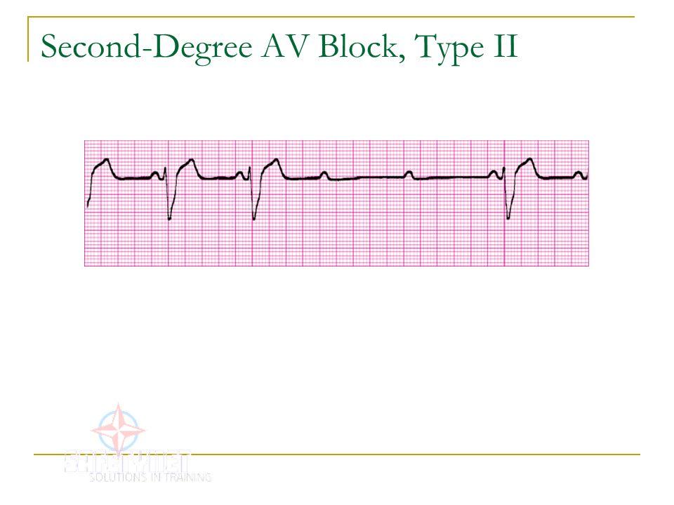 Second-Degree AV Block, Type II