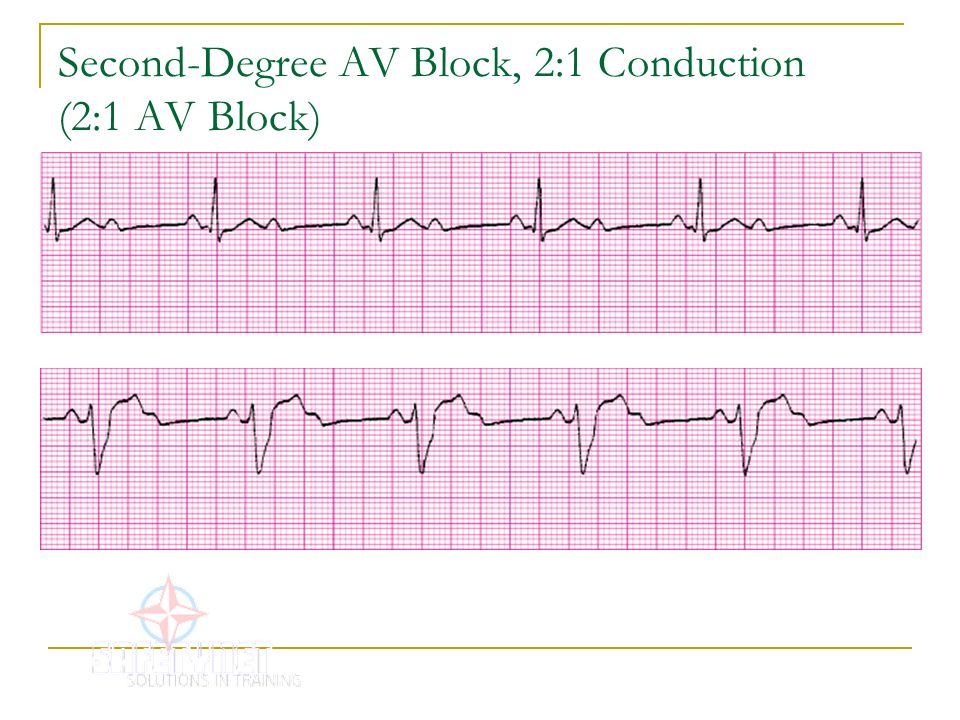 Second Degree AV Block, 2:1 Conduction (2:1 AV Block  2 1 Degree