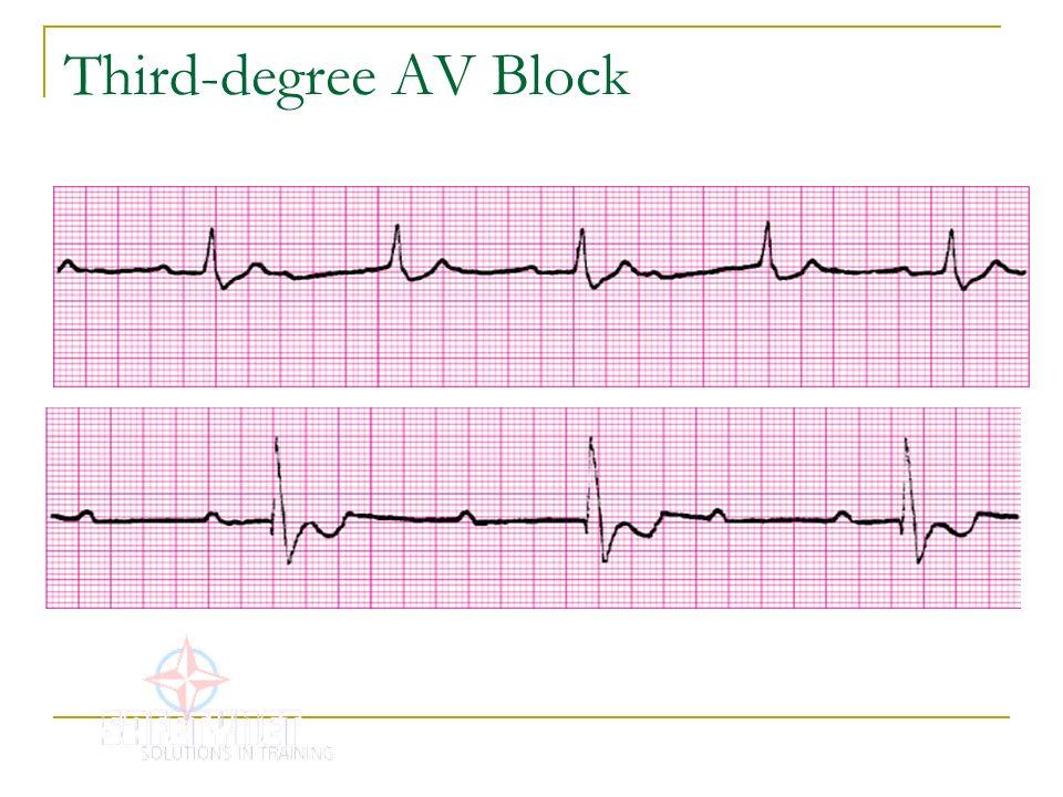 Third-degree AV Block