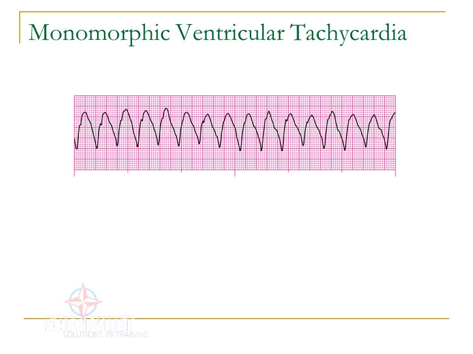 relationship between tachycardia and fever