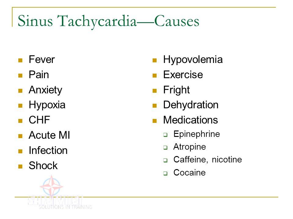 Sinus Tachycardia—Causes
