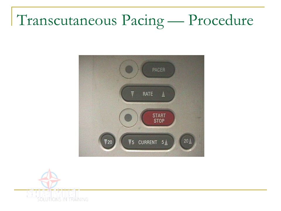 Transcutaneous Pacing — Procedure