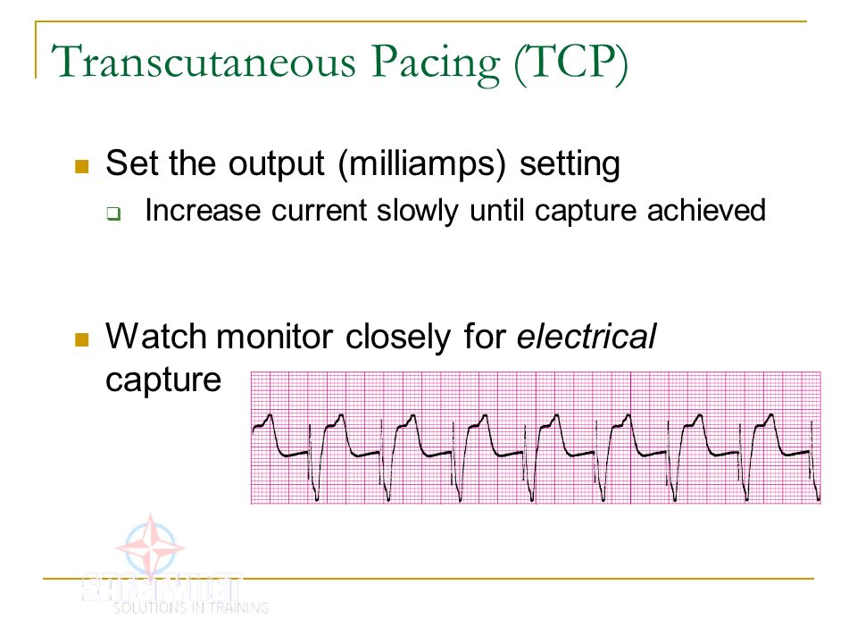 Transcutaneous Pacing (TCP)