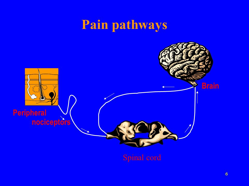 Pain pathways Brain Peripheral nociceptors Spinal cord