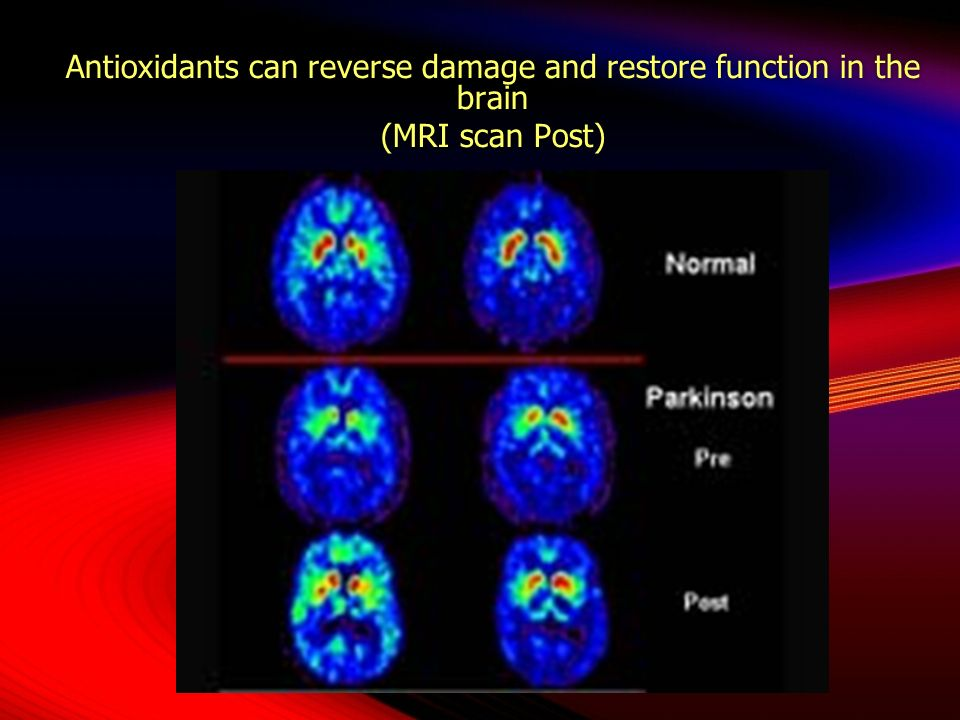 Antioxidants can reverse damage and restore function in the brain