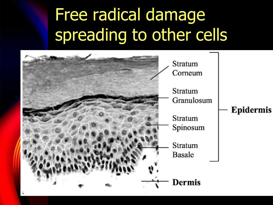 Free radical damage spreading to other cells