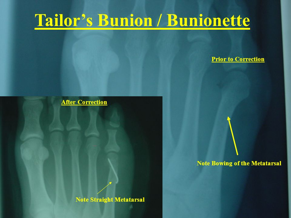 Tailor's Bunion / Bunionette