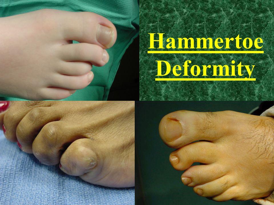 Hammertoe Deformity