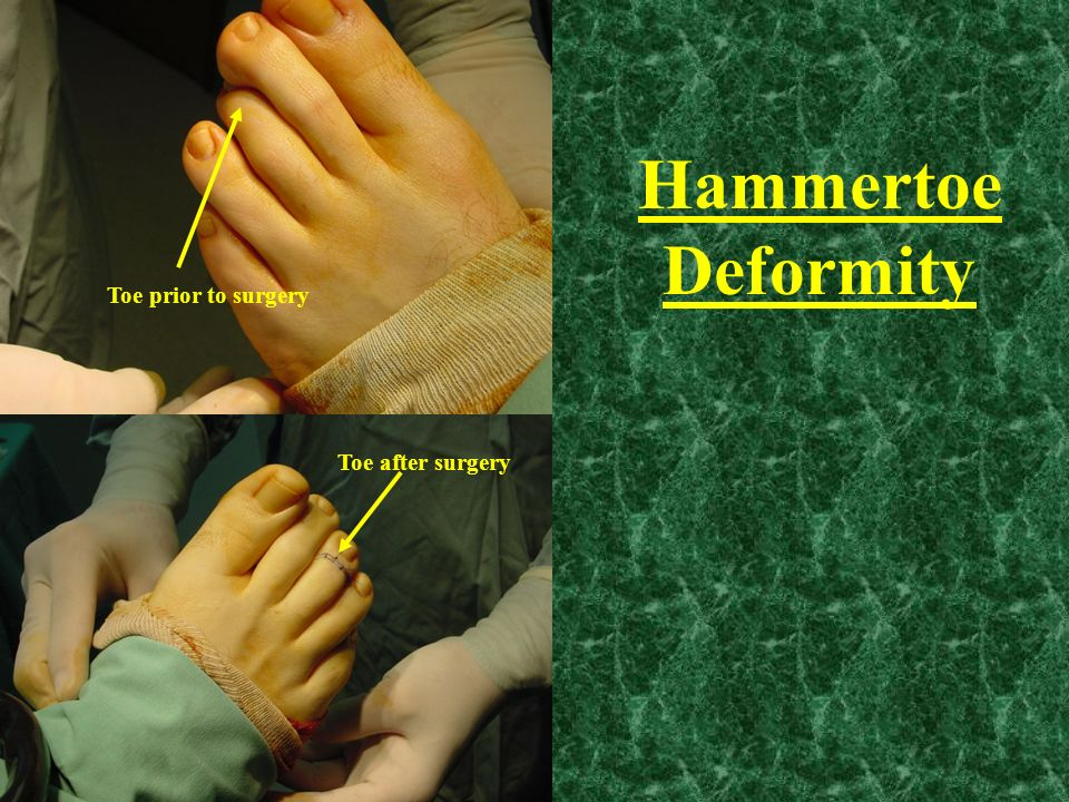 Hammertoe Deformity Toe prior to surgery Toe after surgery