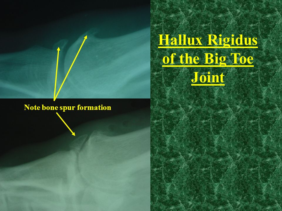 Hallux Rigidus of the Big Toe Joint