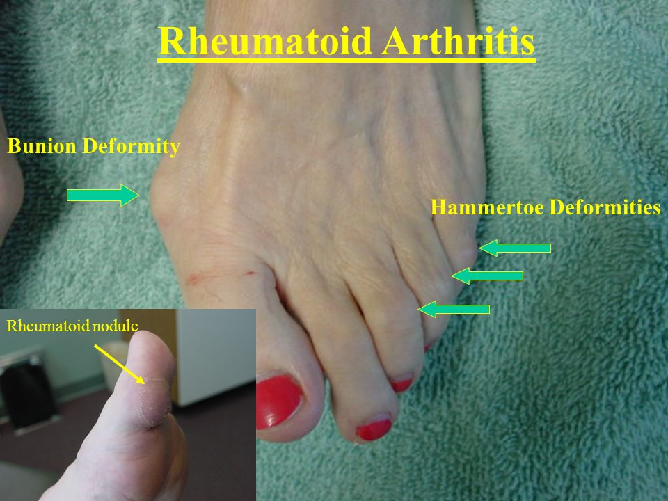 Rheumatoid Arthritis Bunion Deformity Hammertoe Deformities