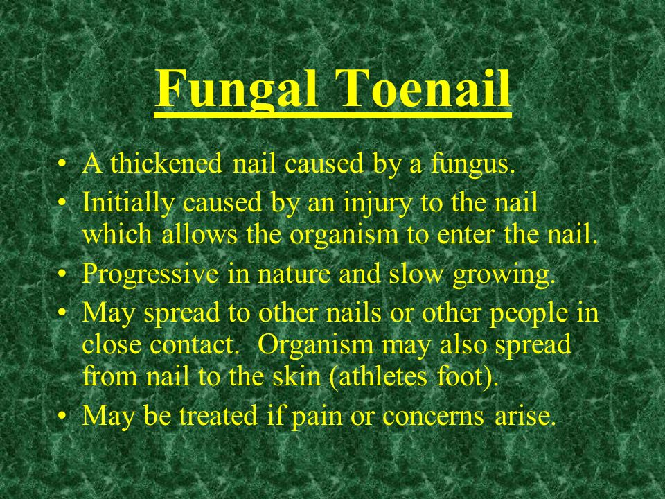 Fungal Toenail A thickened nail caused by a fungus.
