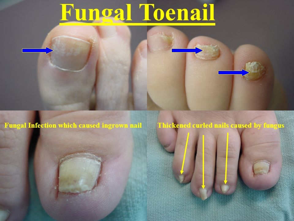 Fungal Toenail Fungal Infection which caused ingrown nail