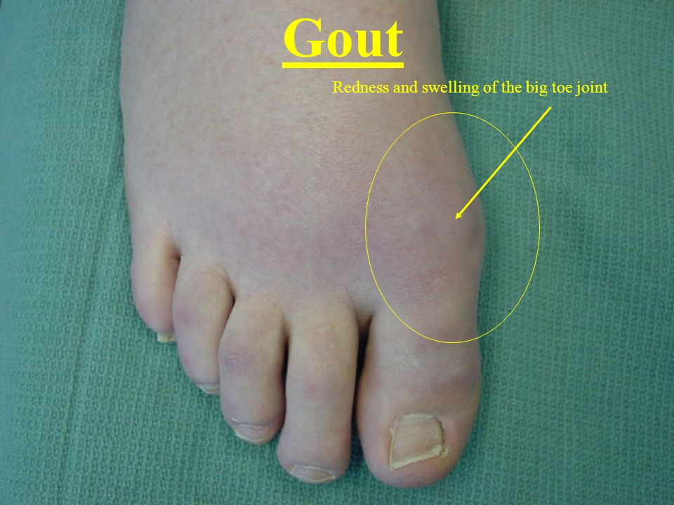 Gout Redness and swelling of the big toe joint