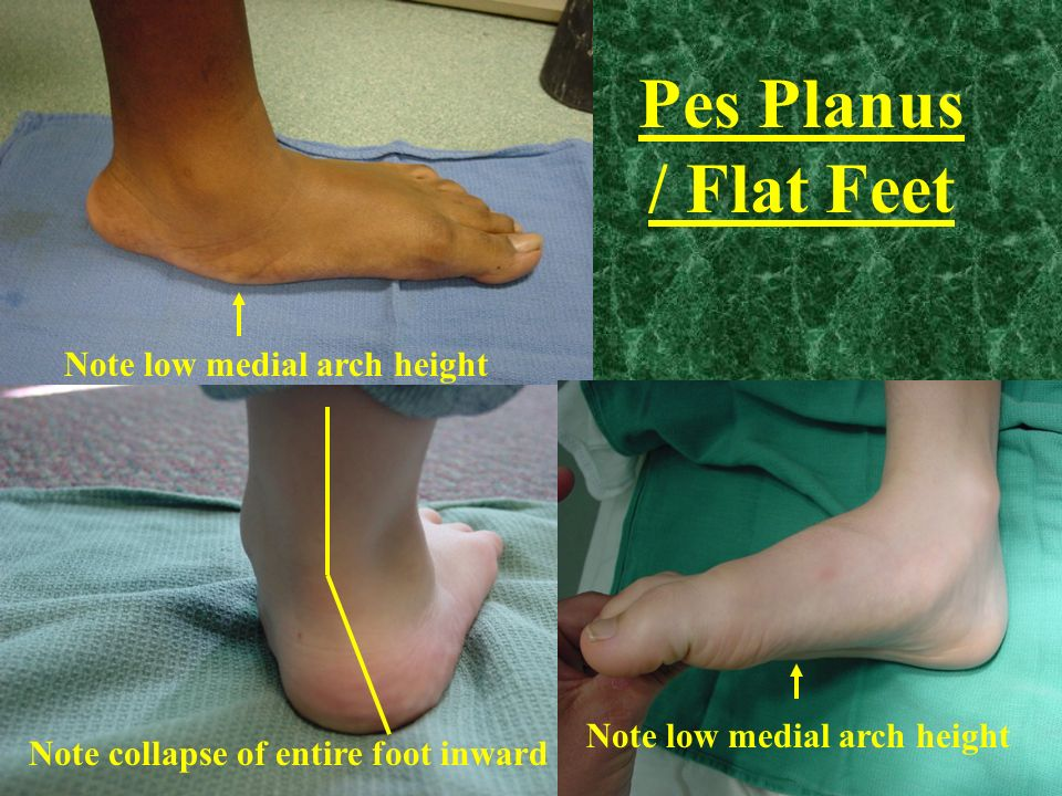Pes Planus / Flat Feet Note low medial arch height