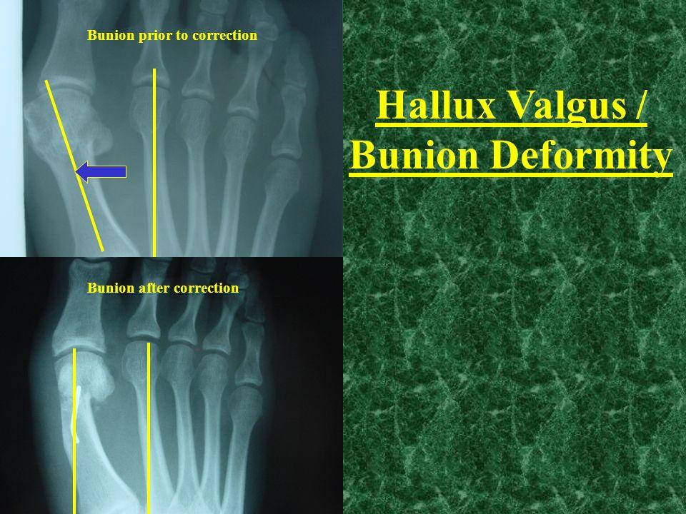 Hallux Valgus / Bunion Deformity
