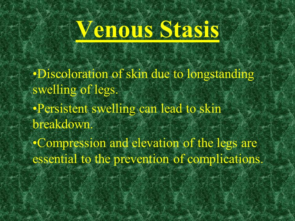 Venous Stasis Discoloration of skin due to longstanding swelling of legs. Persistent swelling can lead to skin breakdown.