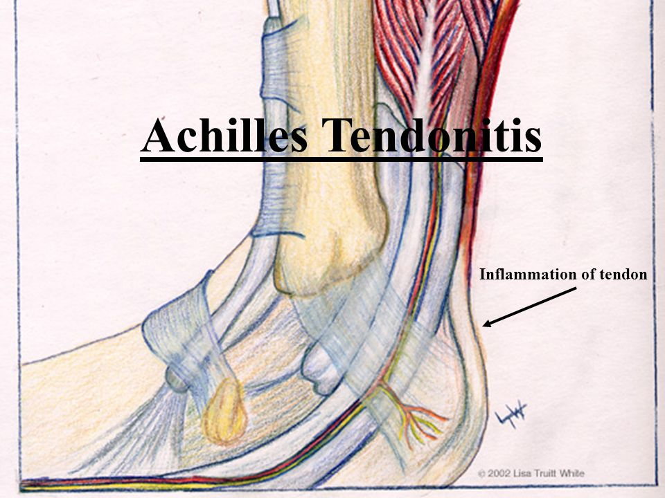 Achilles Tendonitis Inflammation of tendon