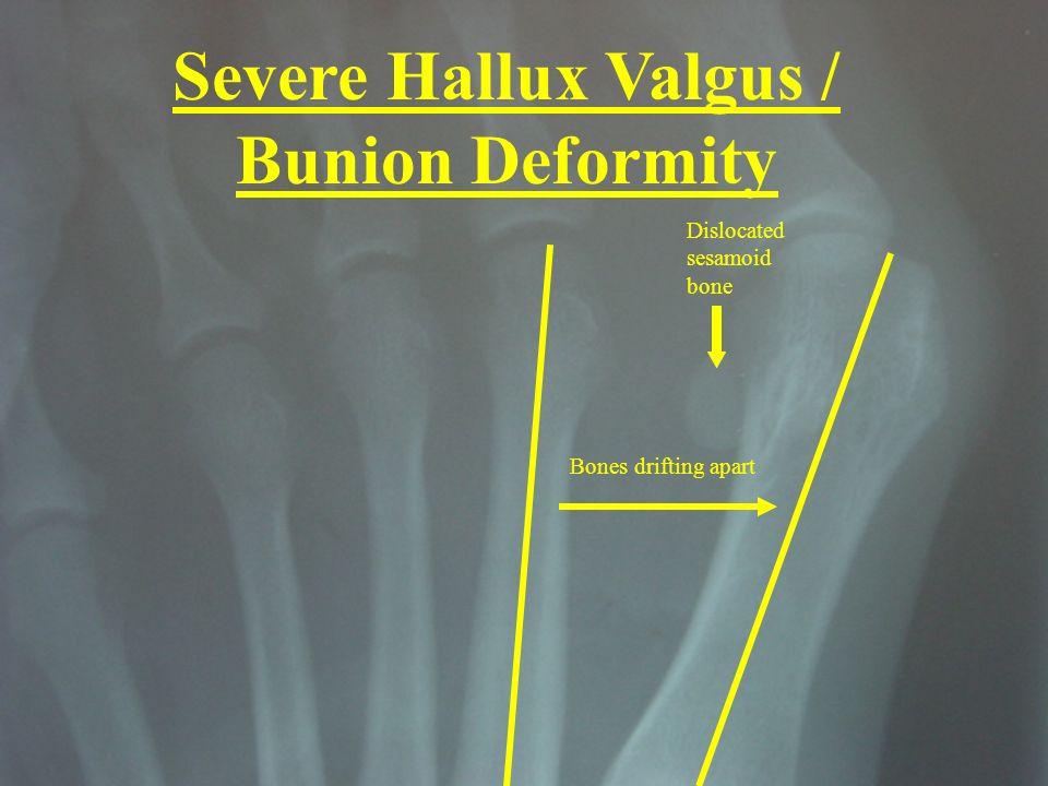 Severe Hallux Valgus / Bunion Deformity