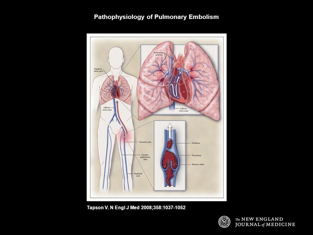 Pathophysiology of Pulmonary Embolism