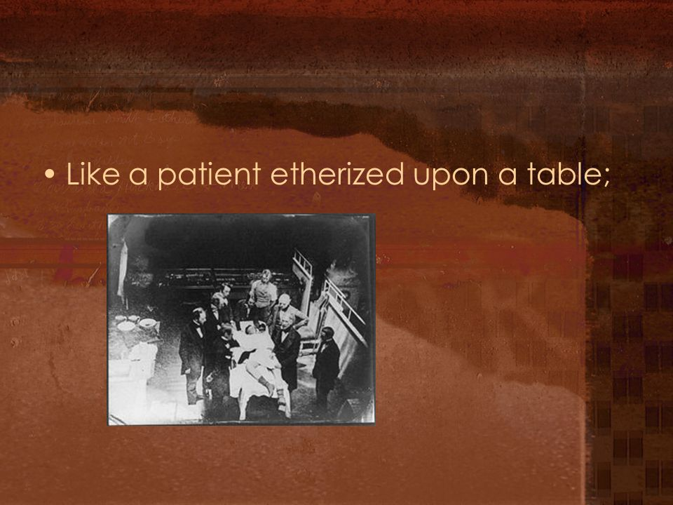 Like a patient etherized upon a table;