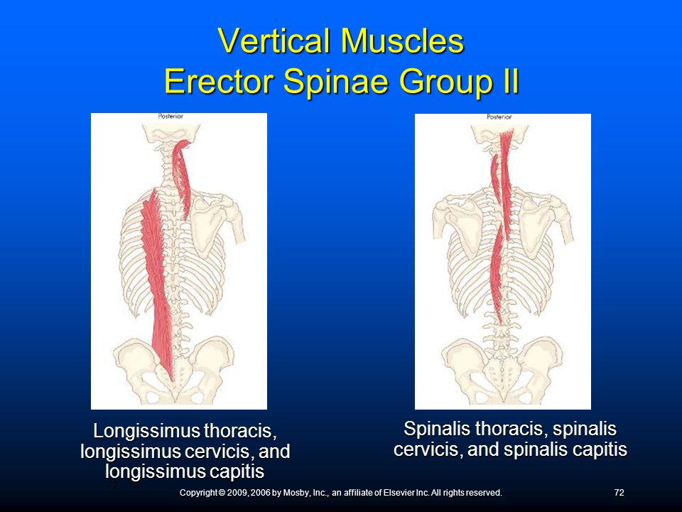 Vertical Muscles Erector Spinae Group II