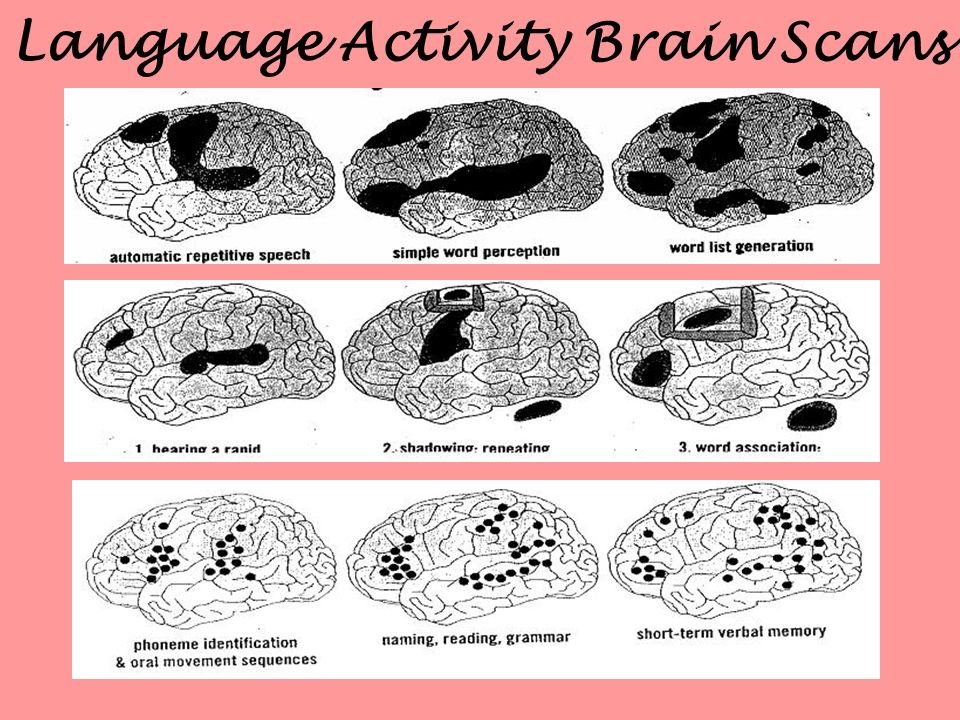 Language Activity Brain Scans