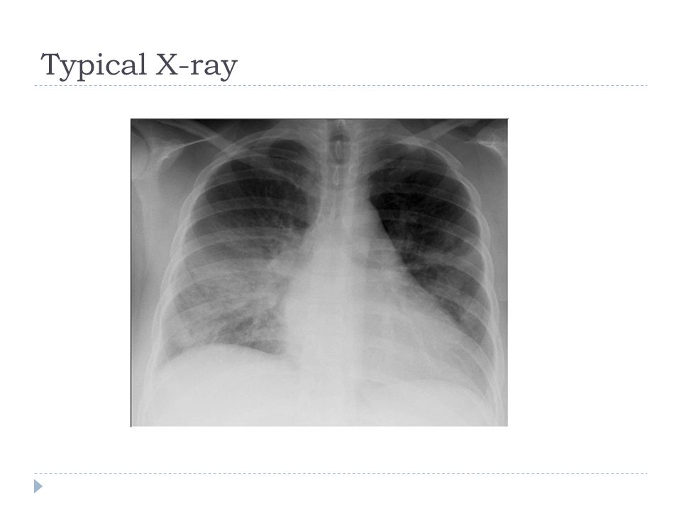 Typical X-ray