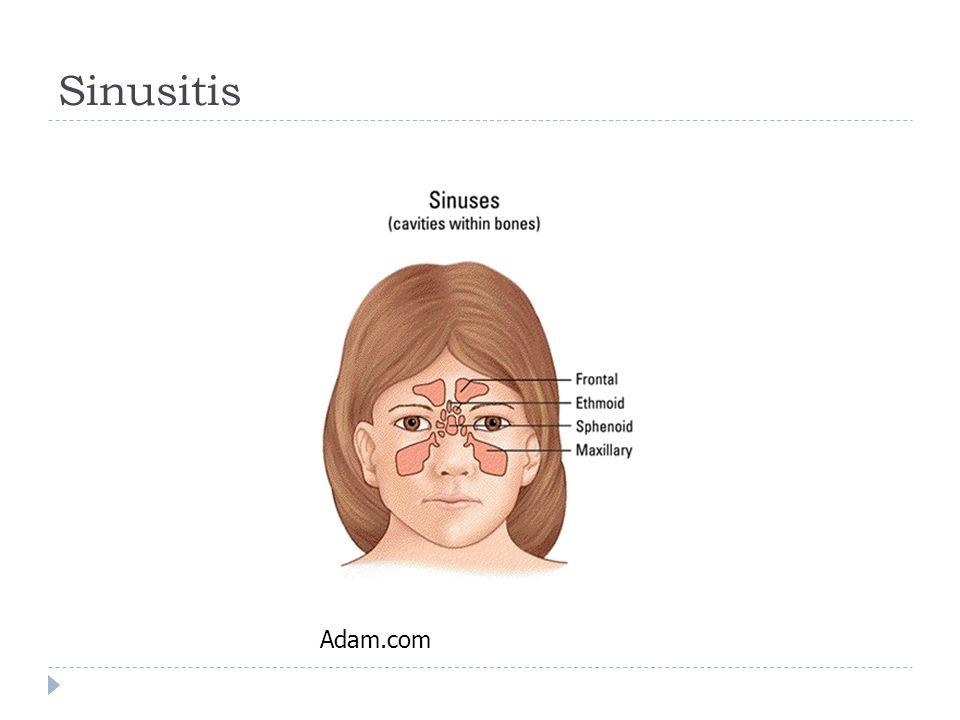 Sinusitis Adam.com