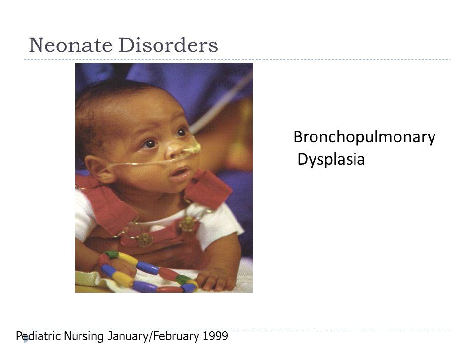 Neonate Disorders Bronchopulmonary Dysplasia