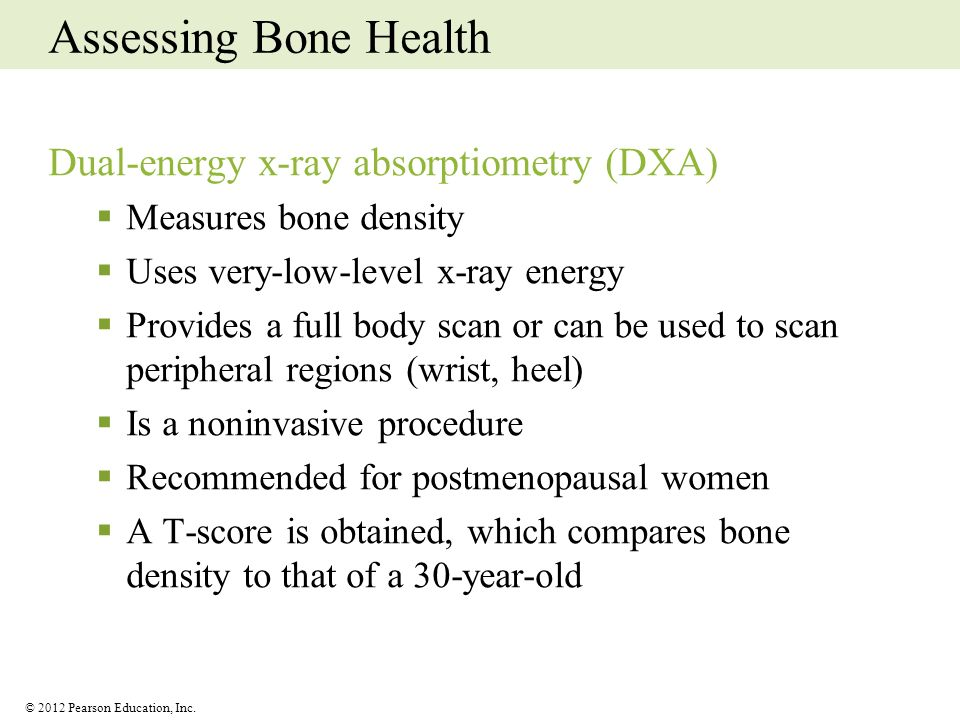 Assessing Bone Health Dual-energy x-ray absorptiometry (DXA)