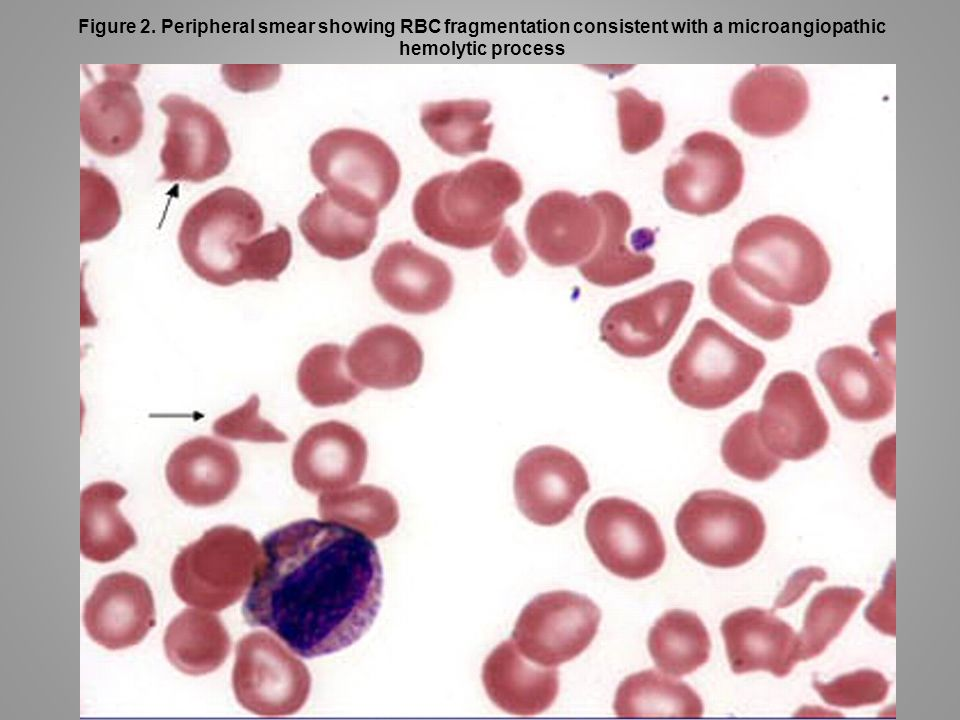 Figure 2. Peripheral smear showing RBC fragmentation consistent with a microangiopathic hemolytic process