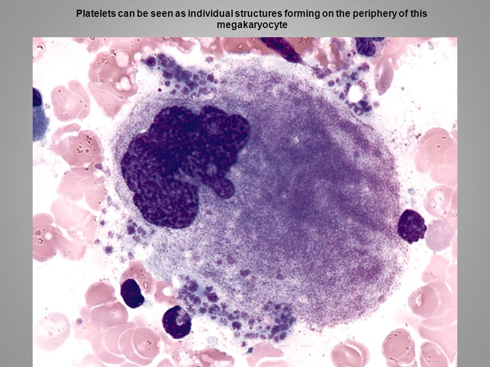 Platelets can be seen as individual structures forming on the periphery of this megakaryocyte