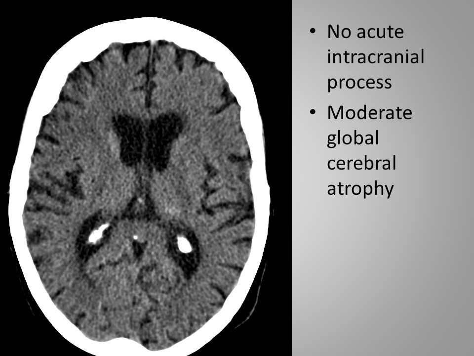 No acute intracranial process