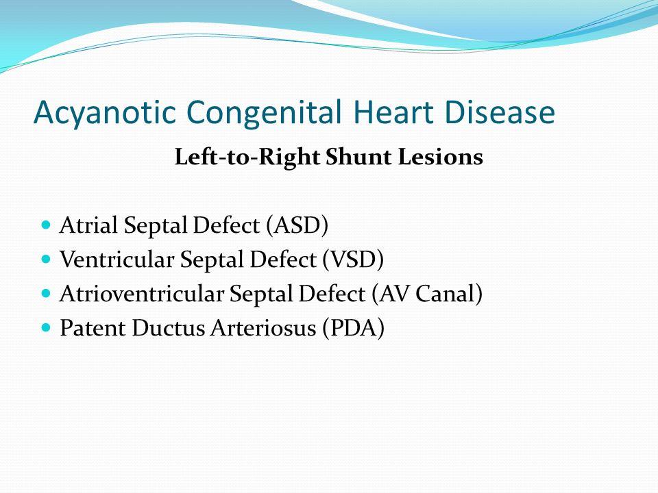 Acyanotic Congenital Heart Disease