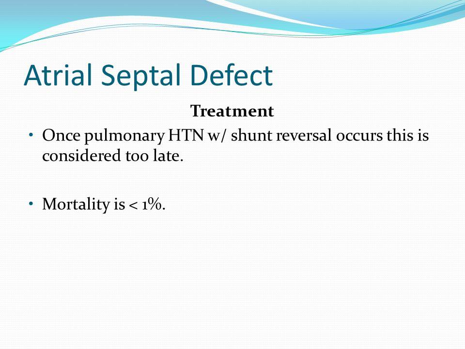 Atrial Septal Defect Treatment