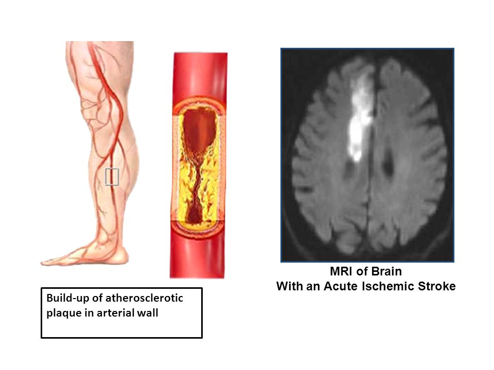 MRI of Brain With an Acute Ischemic Stroke
