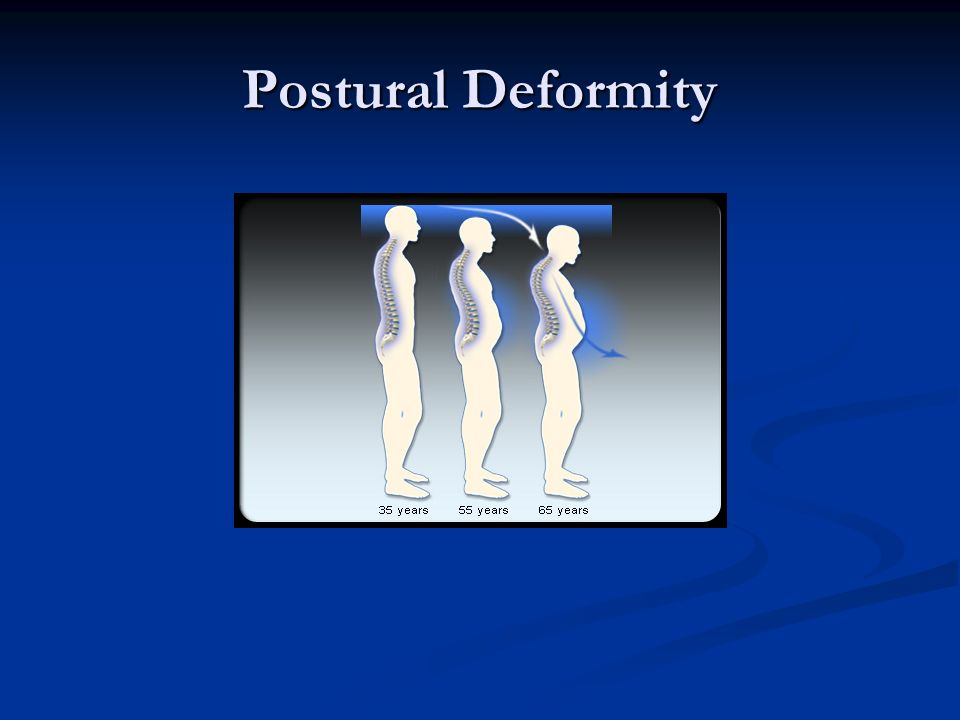 Postural Deformity