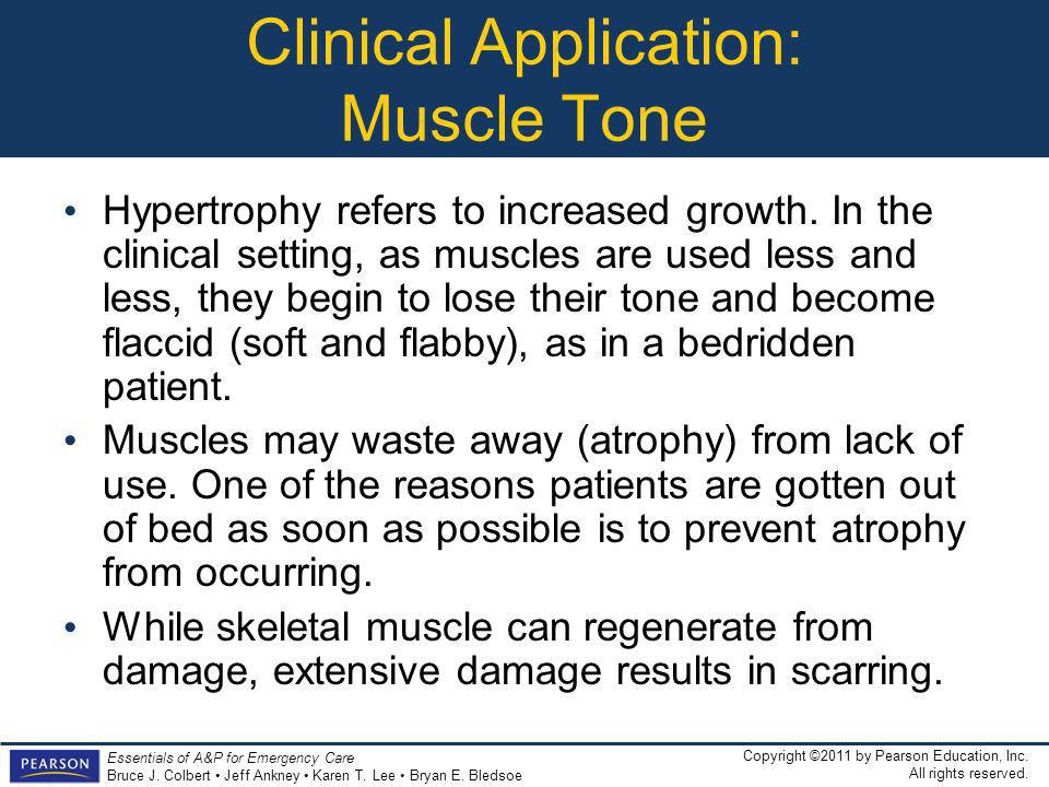 Clinical Application: Muscle Tone